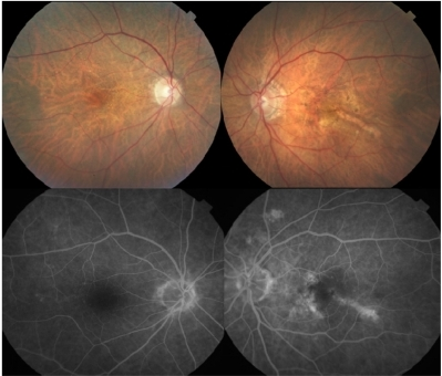 Color fundus photographs shows few drusen on the posterior pole in both eyes, and retinal pigment epithelium (RPE) atrophy with pigmentary clumps on the macular area of left eye. Minimal retinal artery narrowing can be observed in both eyes. Fundus fluorescein angiography depicts window defect in the posterior pole compatible with RPE atrophy in the left eye in the venous phase. There was no apparent delayed fluorescein filling in both eyes.