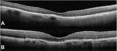Spectral domain optical coherence tomography (SD-OCT) revealed reduced retinal thickness in the right eye (A) and left eye (B). Note the decreased thickness of the inner retina in right eye is more advanced than the left eye.