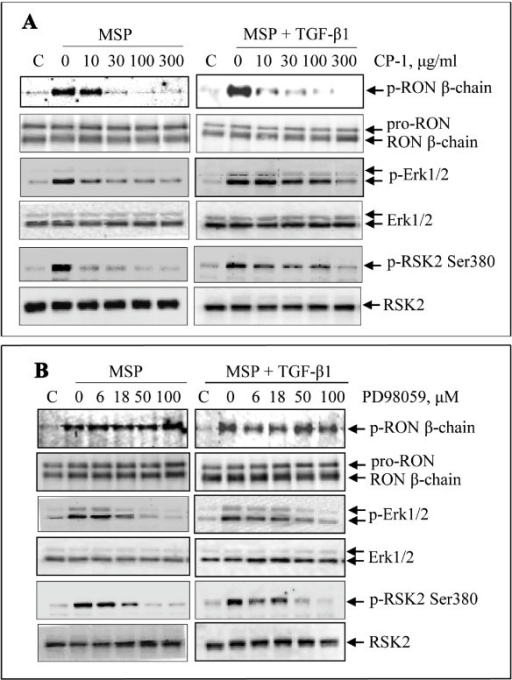 Inhibitory effect of CP-1 and PD98059 on MSP or MSP plus TGF-β1-induced RSK2 phosphorylation: M-RON cells (3 × 106 cells per dish) in DMEM with 1% of FBS were first treated with CP-1 or PD98059 for 10 min followed by stimulation with MSP (2 nM) or MSP plus TGF-β1 (5 ng/ml). Cells were collected 30 min after stimulation. Phosphorylated RON was determined by Western blot analysis after Zt/g4 immunoprecipitation of cell lysates (250 μg proteins/sample). Phosphorylated Erk1/2 and RSK2 were directly determined by Western blot analysis using specific antibodies, respectively. Membranes were also reprobed with individual antibodies to detect non-phosphorylated proteins as the loading controls. Data shown here are from one of two experiments with similar results.