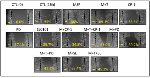Effect of SL0101 on MSP or MSP plus TGF-β1-induced cell migration. The monolayer of M-RON cells in DMEM with 1% FBS) were wounded with a plastic tip and then stimulated with MSP (2 nM), TGF-β1 (5 ng/ml), or both in the presence or absence of CP-1 (300 μg/ml), PD98059 (100 μM), and SL0101 (50 μM). After incubation for 16 h, cells that migrated into the open spaces were observed under microscope and photographed. Wounded areas that covered by migrated cells were calculated as previously described [35]. Data shown here are from one of two experiments with similar results. Scale bars represent 50 μm.