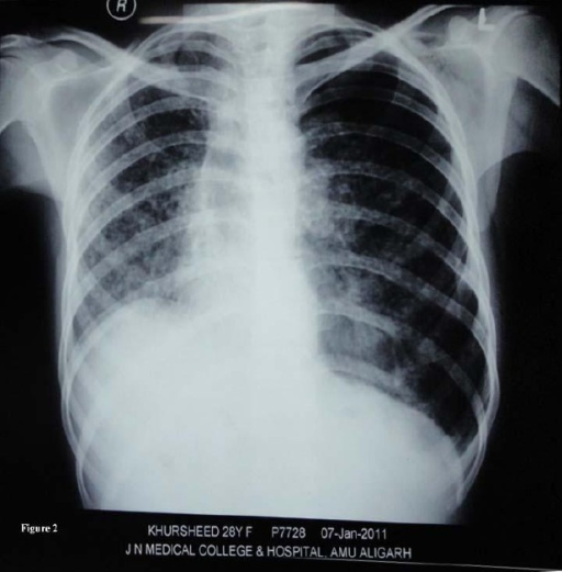 Miliary tuberculosis with recurrent left sided pneumoth