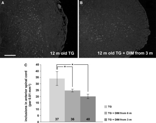 Dimebon treatment reduces the number of amyloid inclusions in the spinal cord of γ-synuclein transgenic mice. Representative images of histological sections through the spinal cord of 12-month-old control Thy1mγSN mice (a) and Thy1mγSN mice treated with dimebon from the age of 3 months (b) stained for amyloid deposits using Congo Red. Scale bar = 100 μm. The bar chart (c) shows means ± SEM of the number of inclusions in the anterior horn of the spinal cord. Statistically significant difference between the control and each experimental group (*P < 0.05, Mann–Whitney U-test) as well as total number of sections analysed per three animals for each group are shown