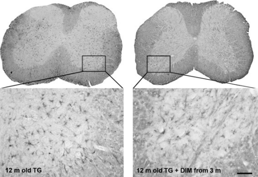 Dimebon treatment ameliorates astrocytosis in the spinal cord of γ-synuclein transgenic mice. Representative images of histological sections through the spinal cord of 12-month-old control Thy1mγSN mice (left panel) and Thy1mγSN mice treated with dimebon from the age of 3 months (right panel) immunostained for reactive astroglia marker GFAP. Scale bar = 50 μm