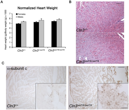 Heart analysis of Cln3Δex7/8 mice. (A) The bar graph depicts normalized heart weights for wild-type (Cln3+/+), heterozygous (Cln3+/Δex7/8), and homozygous (Cln3Δex7/8/Δex7/8) littermate 19–20 week old mice. Normalized heart weights represent a ratio of heart weight (mg = milligrams)/body weight (g = grams). Normalized heart weights were slightly increased in heterozygous Cln3Δex7/8 mice, and more so in homozygous Cln3Δex7/8 mice, compared to wild-type littermates. ANOVA analysis suggested a significant genotype effect (p<0.05). (B) Representative micrographs of hematoxylin and eosin (H&E) stained heart sections from wild-type (Cln3+/+, n = 8) and homozygous (Cln3Δex7/8/Δex7/8, n = 10) littermate 19–20 week old mice are shown, which do not obviously differ from one another in their morphology. Scale bar = 100 µm. (C) Representative micrographs are shown of α-subunit c immunostained heart sections from 19-week old Cln3+/+ and Cln3Δex7/8/Δex7/8 littermate mice. Note the abundance of subunit c-immunopositive deposits in the Cln3?ex7/8/Δex7/8 section. Only sparse punctate subunit c immunostaining is present in the Cln3+/+ section. Scale bar = 200 µm. Inset scale bar = 25 µm.