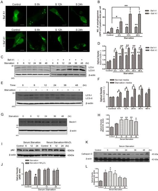 Autophagy was induced in SH-SY5Y neuroblastoma cells by