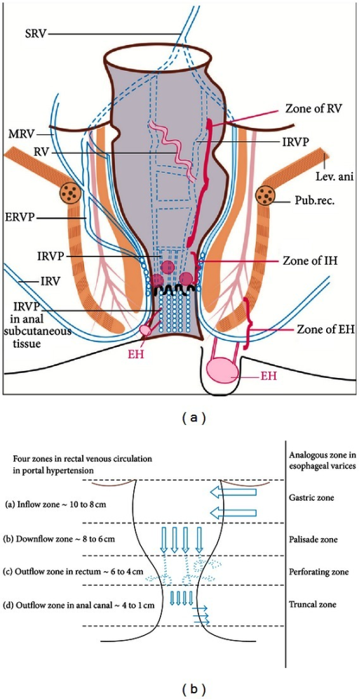 A The Superior Rectal Vein Srv Divides Into Two Bra Open I