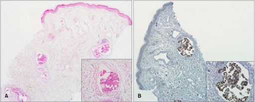 (A) Well-circumscribed tumor nodules in the lymphatic vessel (H&E, original magnification ×40; inset ×200). (B) Thyroid transcription factor-1 (TTF-1)-positive cells (TTF-1, original magnification ×40; inset ×200).