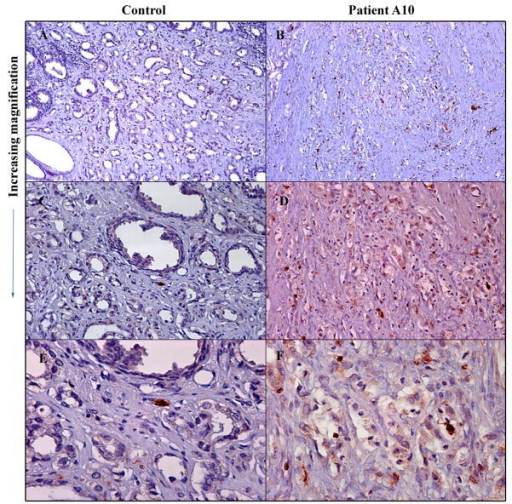 Immune cytolytic cell infiltration in treated tumor compared to untreated control tumorResected prostate tumors were processed and immunohistochemical analysis performed with antibody to human TIA-1 followed by immunoperoxidase staining using avidin-biotin complex. A and B, 10X; C and D, 20X and E and F, 40X.