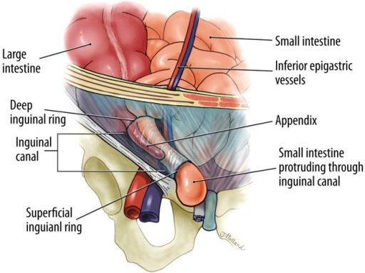 This Illustration Depicts An Amyands Hernia The App Open I