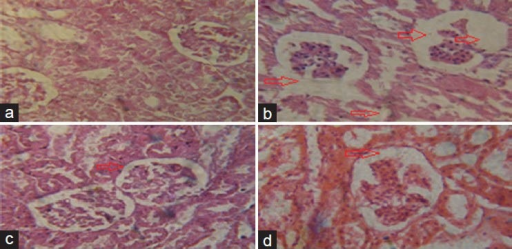 Photomicrograph showing histopatological examination of renal cortex (a) Group C, presenting no common abnormality (b) Group G, presenting glomerular atropy with hydropic changes and proximal tubular cell necrosis with loss of cellular pattern (c) Group GM-pi, presenting normal glomeruli with no evidence of necrosis or ruptured tubules (d) Group M-pi, also presenting normal structures
