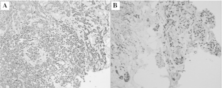 Immunohistochemical staining for CK7 and CK20 in gastric stump mucosa showing (A) CK7+ and (B) CK20+ staining (magnification, ×200). CK, cytokeratin.