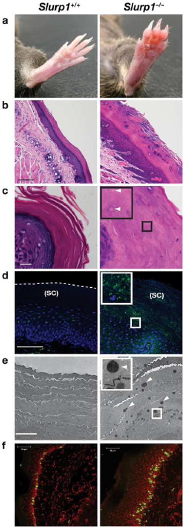 Palmoplantar keratoderma and increased stratum corneum lipid droplets in Slurp1−/− mice(A) Paws from wild-type and Slurp1−/− mice, revealing markedly thickened skin in Slurp1−/− mice. (B–C) Hematoxylin and eosin–stained sections revealing a thickened epidermis in the paw skin of a Slurp1−/− mouse, along with many tiny lipid droplets in the stratum corneum (arrowheads). Scale bars = 50 µm and 10 µm for B and C respectively. (D) BODIPY 493/503 (green) staining showing lipid droplets in the stratum corneum (SC) of the paw skin of a Slurp1−/− mouse. DNA is stained with DAPI (blue). Scale bar = 50 µm. (E) Electron micrograph showing lipid droplets in the stratum corneum of Slurp1−/− paw skin (arrowheads). Scale bar = 1 µm. (F) Increased BrdU incorporation into DNA of paw keratinocytes of Slurp1−/− mice (green). DNA is stained with DAPI (red). Scale bar = 50 µm.
