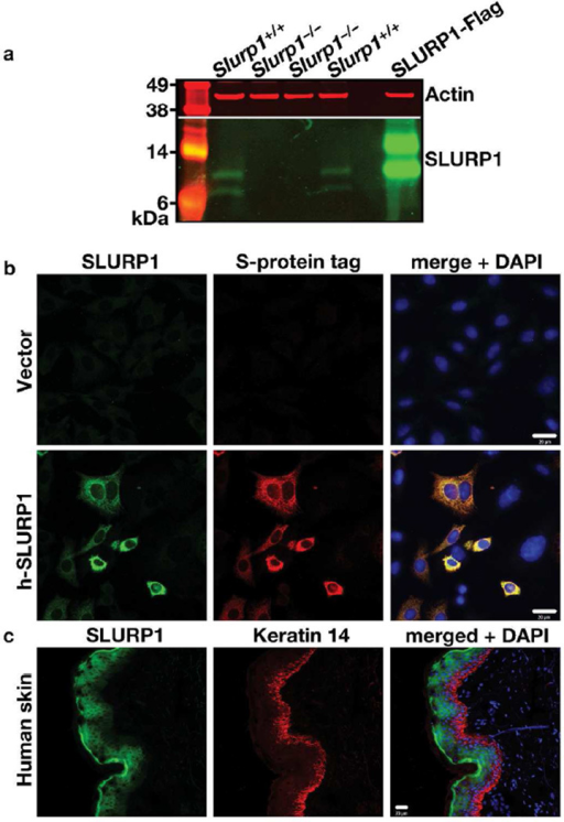 Immunochemical detection of SLURP1(A) Western blot of extracts of paw skin from wild-type (Slurp1+/+) and Slurp1−/− mice with an antibody against a mouse SLURP1 peptide. CHO cells transfected with a flag-tagged mouse SLURP1 expression vector were used as a control. SLURP1, like nearly all other Ly6 proteins, has an N-linked glycosylation site, and the two SLURP1 bands likely reflect glycosylated and nonglycosylated versions of the protein (Beigneux et al., 2008). The SLURP1 antibody did not cross-react with SLURP2. (B) The specificity of the human SLURP1 antibody (green) in these studies was assessed by immunocytochemistry. CHO-K1 cells were transiently transfected with an empty vector or an S-protein–tagged human SLURP1 expression vector. Cells that had been transiently transfected with the S-protein–tagged SLURP1 vector were identified with an S-protein–specific antibody (red). (C) Detection of SLURP1 (green) in human skin by immunohistochemistry with a human SLURP1 antibody. Keratin 14 (red) was used as a marker of basal keratinocytes; DNA was stained with DAPI (blue). Scale bars = 20 µm.