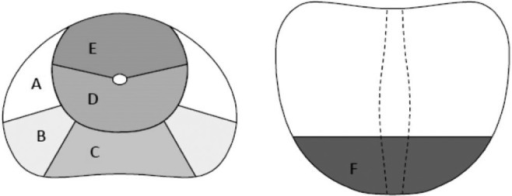Each prostate was divided into 12 segmented regions. For tumor localization, each prostate was divided into halves: right and left. Each half was further divided into 6 regions as follows: (A) outside peripheral zone (Pz) anterior, (B) outside Pz posterior, (C) inside Pz, (D) central transitional zone (Tz), (E) Tz anterior, (F) apex.