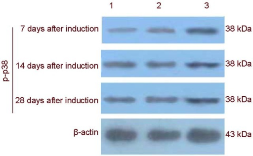 Electropherogram of p38 phosphorylated protein (p-p38) expression in rat bone marrow mesenchymal stem cells induced with Buyang Huanwu decoction (BYHWD) detected by western blot analysis.1: Blank control group; 2: negative control group; 3: apr-BYHWD group. In the apr-BYHWD group, p38 phosphorylated protein expression peaked at day 28. apr-BYHWD: Active principle region of BYHWD.