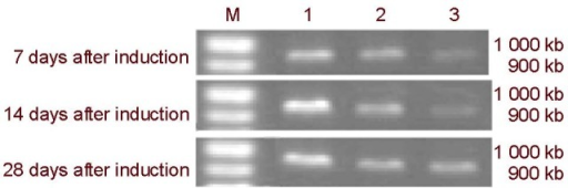 Reverse transcription-PCR electropherogram of neuron specific enolase mRNA expression after the mitogen-activated protein kinase pathway was blocked.1: apr-BYHWD group; 2: apr-BYHWD + SB203580 group; 3: apr-BYHWD + PD98059 group; M: Marker; BYHWD: Buyang Huanwu decoction; apr-BYHWD: active principle region of BYHWD; PD98059 and SB203580: cellular signaling pathway blocking agents.