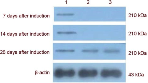 Western blot electropherogram of nestin protein expression after the mitogen-activated protein kinase pathway was blocked.1: apr-BYHWD group; 2: apr-BYHWD + SB203580 group; 3: apr-BYHWD + PD98059 group. BYHWD: Buyang Huanwu decoction; apr-BYHWD: active principle region of BYHWD; PD98059 and SB203580: cellular signaling pathway blocking agents.