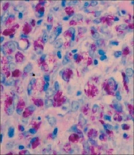 Cells filled with numerous acid fast M. leprae (Fite Faraco stain × 400)
