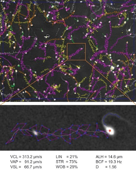 The upper panel shows the reconstructed sperm tracks in one analysis field of the IVOS-II system (1 s @ 60 Hz), purple tracks are ones that have passed the Boolean sort argument for being hyperactivated. The lower panel shows the zoomed image of one of these tracks including the spermatozoon at the start of the track; note the high curvature wave, characteristic of a hyperactivated spermatozoon, present in the proximal region of the tail. The cell's kinematic values are shown at the bottom of the figure, including the fractal dimension, D, clearly confirming hyperactivation.60
