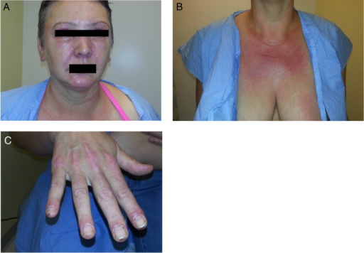 Image of patient with facial rash and periorbital edema that initially developed during her workup (A). Images of the worsening rash on her chest and hands that initially developed during her workup (B and C).