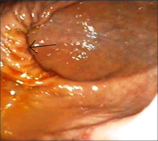 Endoscopic image showing extreme twisting of the stomach (arrow). The torsion of the stomach twisted the fundus and changed the anatomical structure.
