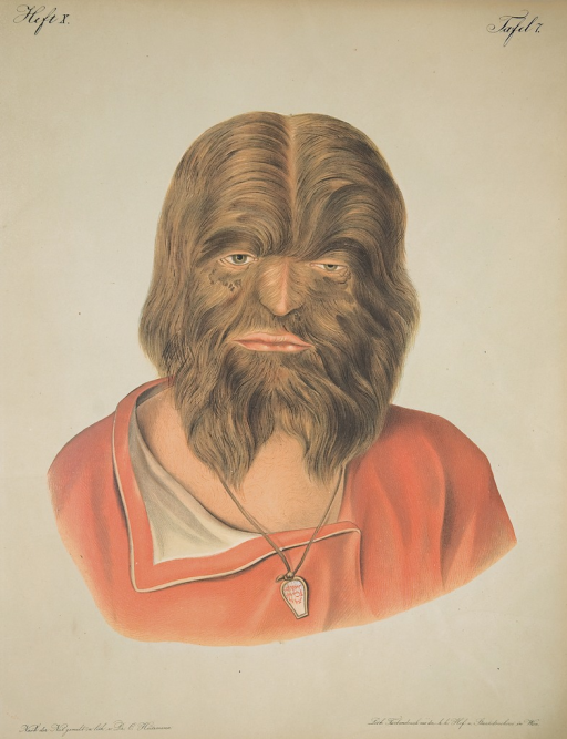 <p>Image of a lithograph from Hebra's Atlas, pt. 10, pl. 7, showing a man in red shirt whose face is completely covered in brown hair.</p>