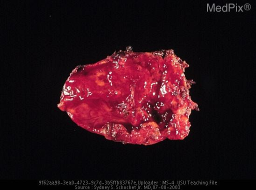 The resected tumor had a variegated red and yellow color.