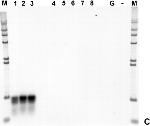 "Developmental- and tissue-specific expression of T-cap  transcripts. (A) In situ hybridization of whole-mount embryos at  day 10.5 pc using probes from the mouse titin-cap cDNA. Transcripts are detected in the heart at 9.5 d of gestation (not shown).  At day 10.5 pc, transcription has also commenced in the somites.  The transcription pattern is very similar to that of titin (Kolmerer  et al., 1996), except that transcripts for the titin-cap protein are  also detected in the otic vesicle (B, selected details of A). (C)  Presence of titin-cap protein transcripts in human cDNAs from  different tissues, as detected by RT-PCR. T-cap protein is expressed exclusively in striated muscles. Lanes 1–3, fetal heart,  adult heart, and adult skeletal muscles, respectively; lanes 4–8,  normal and pregnant uterus, fetal brain, liver, and spleen, respectively. Controls: lane G, genomic DNA, ""no template""; lane M,  lambda HindIII size marker."