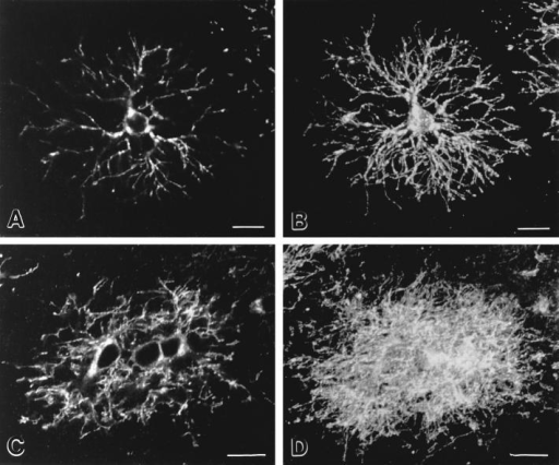 Premyelinating oligodendrocytes in cerebral cortex and corpus callosum have different morphologies. Confocal images of single (A and C) and reconstructions of 20 (B and D) 1-μm-thick optical sections of DM-20/PLP–positive premyelinating oligodendrocytes  from the cerebral cortex (A and B) and corpus callosum (C and D). Cortical cells (A and B) extend an orderly array of processes that  tend to branch in a Y-shaped manner as they terminate. Premyelinating oligodendrocytes in the corpus callosum (C and D) occur in  groups and extend processes in a less orderly and overlapping fashion. Bars, 10 μm.