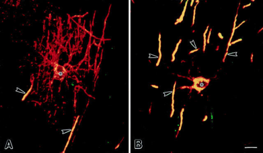 Comparison of the distribution of DM-20/PLP (red) and PLP (green) in confocal images of oligodendrocytes. Areas of colocalization appear yellow. During early stages of axonal ensheathment, DM-20/PLP immunoreactivity is evenly distributed on oligodendrocyte processes (A, red) and developing myelin internodes (A, red and yellow), while PLP-specific immunoreactivity is restricted to  perinuclear cytoplasm and developing myelin internodes (A, yellow). In more mature oligodendrocytes, DM-20/PLP is detected in oligodendrocyte processes and myelin, while PLP is restricted to perinuclear cytoplasm and myelin (B, yellow). Asterisks and arrowheads  denote nucleus of cell and myelin internodes. Bars, 10 μm.
