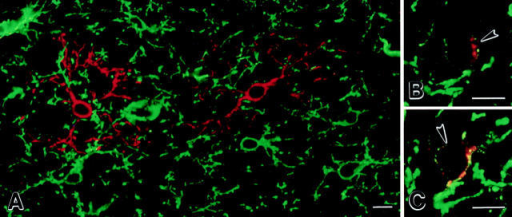 Premyelinating oligodendrocytes are generated from NG2-positive progenitor cells. Confocal images of sections (30-μmthick) from 7-d-old rat cerebral cortices that were immunostained with NG2 (green) and DM-20/PLP (red) antibodies. A network of  NG2-positive cells covers the cortical neuropil (A, green). DM-20/PLP–positive premyelinating cells are less abundant (A, red). A small  but consistent population of cells are weakly stained by both NG2 and DM-20/PLP antibodies (B and C, arrowheads). NG2 immunoreactivity is punctate on the plasma membrane of these cells, whereas DM-20/PLP appears punctate in perinuclear cytoplasm on proximal  cell processes (B and C). Bars, 10 μm.