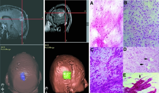 Clinicopathological Features of GlioblastomaLeft, a sagittal (top), contrast-enhanced, T-1 weighted magnetic resonance (MR) image from a patient shows a left posterior parietal GBM, centered within the red cross during intra-operative navigation. The tumor is overlaid in purple on the skull (left, bottom); the several small discs seen on the surface of the scalp are used for intra-operative localization. Middle, a sagittal (top), contrast-enhanced, T-1 weighted MR image from a different patient shows a GBM within the right anterior parietal and posterior temporal lobes, represented in green on the bottom image. Right, histological variability of GBMs. A, normal paucicellular temporal lobe. B, typical, hypercellular GBM from one patient 50 years of age. C, excessive stromal proliferation within a separate portion of the same patient seen in B. D and E, areas of pronounced vascular proliferation (arrows) found throughout the specimen from a second patient, also 50 years of age, whose clinical presentation (headache and seizure) and tumor on MR imaging was nearly identical to that of the patient in B. The patient in B had little vascular proliferation compared to the patient depicted in D; conversely, patient D had no areas of stromal proliferation. Magnification in A–D, 200×; 400× in E. Hematoxylin and eosin staining.