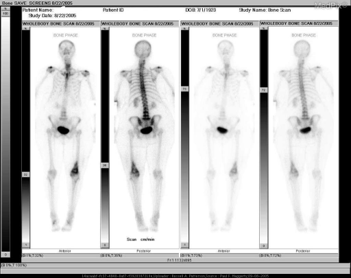 3-phase Tc99m scintigraphy demonstrates increased radiopharmaceutical uptake in the distal left femur.