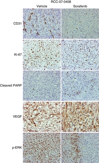 Effects of sorafenib on phospho-ERK1/2, VEGF expression, angiogenesis, cell proliferation and apoptosis of RCC-07-0408 xenograft. Mice bearing RCC-07-0408 tumours were randomised (10 mice per group) and treated with vehicle or 40 mg kg−1 per day sorafenib for 21 days. Representative pictures of blood vessels stained with anti-CD31, proliferative cells stained with anti-Ki-67, apoptotic cells stained with anti-cleaved-PARP, VEGF expression stained with anti-VEGF, and p-ERK1/2 stained with anti-phospho-ERK antibodies in vehicle- and drug-treated tumours are shown ( × 200). Experiments were repeated twice with similar results.
