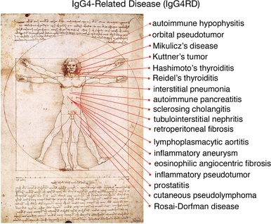 igg4 related diseases #10