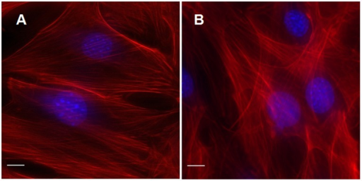 Pulsed ultrasound radiation affects the arrangement of actin cytoskeleton in MC3T3-E1 osteoblasts.Pulsed ultrasound was applied for 1 min, cells were then rinsed three times with fresh DPBS (total time,10 min), then fixed and stained with rhodamine-phalloidin. Actin stress fibers were imaged in control cells (A) and 10 min (B) after ultrasound radiation. Actin stress fibers increased following pulsed ultrasound radiation. Scale bar, 10 µm.