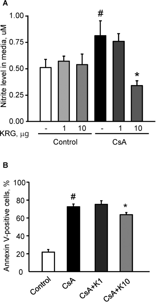 Effect of KRG on apoptotic cell death in INS-1 cells during CsA-induced injury.(A and B) TUNEL staining was used to detect apoptosis, and its quantitative analysis is shown for INS-1 cells treated with either CsA alone or CsA plus 1 or 10 µg/mL of KRG for 24 h. TUNEL-positive nuclei (arrows) were rarely observed in the control group or in those treated with KRG alone. However, the numbers of TUNEL-positive nuclei increased significantly with CsA treatment compared with the control, and the addition of KRG decreased this. (C) Immunoblot analyses for Bcl-2, Bax and active caspase-3 in the INS-1 cells. The expression of Bcl-2 was reduced significantly in both CsA plus K groups compared with the CsA-alone group. By contrast, the expression levels of Bax and active caspase-3 were reduced in both CsA plus K groups compared with the CsA-only group. Magnifications×400. Relative optical densities of bands in each lane were normalized with each β-actin band from the same gel. #P<0.05 vs. Control or K1 or K10; *P<0.05 vs. CsA.