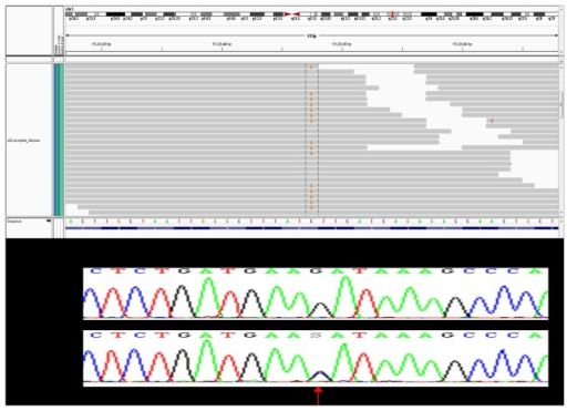 Visualization of single nucleotide variant validation.Sanger sequence validation of highly expressed novel somatic SNVs for MRPL3 variant in the BCT40 HER2 tumor sample. RNA-Seq sequence reads shown above Sanger sequencing tracing, with mutation shown by an arrow.