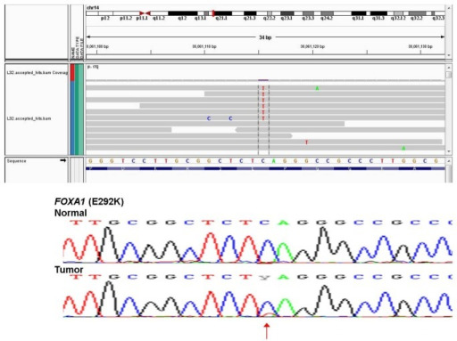 Representation of single nucleotide variant validation.Sanger sequence validation of low expressed novel somatic SNVs for FOXA1 in the BCT40 HER2 tumor sample. RNA-Seq sequence reads shown over Sanger sequence trace with mutation indicated by an arrow.
