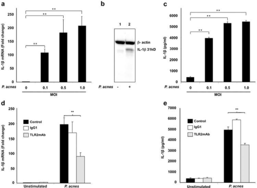 P. acnes induction of IL-1β in human monocytesPrimary human monocytes from normal donors were stimulated in the presence or absence of various concentrations of live P. acnes (MOI of 0.1, 0.5 and 1.0) for 24 hours. a) IL-1β gene expression was assessed by qRT-PCR. Data represents 3 donors; b) Pro-IL-1β protein (31kD band) in the cell lysates was determined by western blot; and c) Mature IL-1β secretion into culture supernatant was assessed by ELISA. Monocytes were pretreated anti-TLR2, or isotype control mAbs 30 minutes prior to stimulation with P. acnes (MOI 0.5) and the induction of IL-1β at mRNA and supernatant protein levels was determined by qPCR (d) and ELISA (e) respectively. Data represent mean ± SD (n=3; *p ≤ 0.05, **p ≤ 0.01).