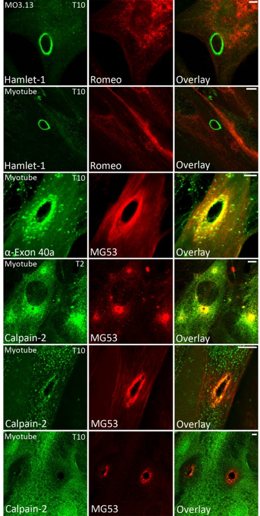 Dysferlin exon 40a and calpain recruit to sites of membrane injury. Cultured MO3.13 secondary oligodendrocytes (row 1) and primary human myotubes (row 2) were shot with 4-μm silica beads using a Bio-Rad Helios Gene Gun, fixed at 10 s postinjury in cold 3% paraformaldehyde, and then permeabilized and immunolabeled (see Materials and Methods). Romeo was applied for 2 h before Hamlet-1 to bias the detection of the N-terminal dysferlin epitope. Dysferlin was detectable only at sites of membrane injury with Hamlet-1 (rows 1 and 2). Staining with an antibody raised to dysferlin exon 40a revealed exon 40a–containing dysferlin recruits to sites of injury within 10 s (row 3). Calpain-2 was detectable at sites of membrane injury at 2 s (T2, row 4) and 10 s postdamage (T10, row 5). Large-injury sites often showed a void of negative labeling for calpain-2 (T10, row 6), suggesting that calpain might be extracted or escape from large injuries. Scale bar, 5 μm.