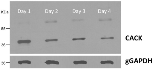 CACK is up-regulated in logarithmic phase choanomastigotes.Detection and differential expression analysis of CACK in 20 µg total protein extracts by Western blot with 1∶500 polyclonal antibody against the LACK analogue throughout the choanomastigote growth curve. The ∼60 KDa band presumably contains dimeric CACK aggregates (González-Aseguinolaza et al., 1999). gGAPDH is the protein of reference (dilution 1∶10,000 of the monoclonal antibody).