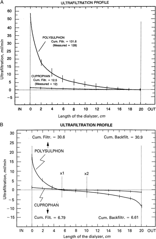 Ultrafiltration profiles derived from albumin concentration along the length of the dialysers. (A) Maximal ultrafiltration is observed at the proximal end of the dialyser with a subsequent decrease to zero at the distal end. (B) Maximal ultrafiltration is observed at the proximal end of the dialyser with a subsequent decrease to zero at different points of the polysulphone (×1) and cuprophane (×2). From these points, backfiltration begins reaching its maximum at the distal end of the dialyser. Despite different profiles are observed, cumulative ultrafiltration and cumulative backfiltration are equal. (Modified from ref. [19], reprinted by permission from Macmillan Publishers Ltd).