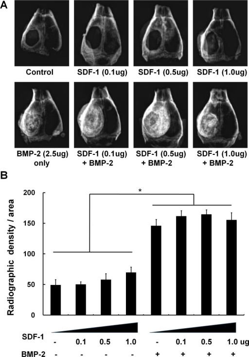 The effect of simultaneous treatment with SDF-1 and BMP-2 on orthotopic bone formation.Soft X-ray examination was carried out after implantation of collagen sponges to critical-size calvarial defects with/without BMP-2 (2.5μg) and SDF-1 (0, 0.1, 0.5, or 1 μg/collagen sponge) in mice. (A) Representative radiographic images, (B) Quantification of bone regeneration by radiographic density at 4 weeks post-implantation (*, p < 0.05).