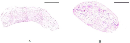 Hematoxylin and eosin staining of low (A) and high (C) aspect ratio TE sample after 3 weeks of culture.Both samples were compacted after 3 weeks. The scale bar represents 500 μm.