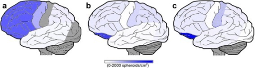 Axonal spheroids were heterogeneously distributed throughout the subcortical white matter across all three subjects. Lateral representations display the relative burden of the subcortical white matter spheroid pathology as density measurements for Cases #1-3 that are mapped to different cortical regions (a-c respectively). Densities of the APP positive spheroids were obtained from counts and surface areas generated by white matter regions of interest in NIH's ImageJ 1.49. Dark grey areas indicate regions where densities were not obtained
