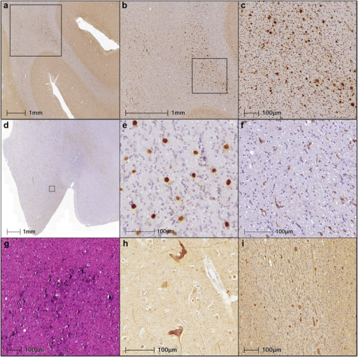 Common neuropathological features of the 3 cases of HDLS studied here. Spheroids were abundant (a) primarily in the deeper white matter without affecting the short association fibers; b spheroids had a heterogeneous distribution as is evident by comparing the left and right side of the image; c focal very dense clusters of spheroids were seen (Case #3, orbital frontal cortex). d Microglia were not diffusely distributed and were of two distinct populations. Many microglia had morphologies indicative of (e) activated phagocytic macrophages that were CD68 positive and Iba1 negative with unusually ramified morphologies (f) while others were Iba1 positive microglia with more simple morphologies (Case #2, anterior corpus callosum). Occasionally, additional pathologies included (g) patches of calcifications (Case #2, blue-black splotchy areas in the anterior corpus callosum) and (h) irregular neuronal accumulations of pathological tau (Case #3, anterior cingulate). i Spheroids could also be visualized by tau, ubiquitin and α-synuclein antibodies (not shown here as well as by anti-neurofilament antibodies (shown here for Case #1 in the angular gyrus). Antibodies and stains used: (a-c) 22c11, (d-e) CD68, (f) Iba1, (g) H&E, (h) PHF1, (i) RMO24.9