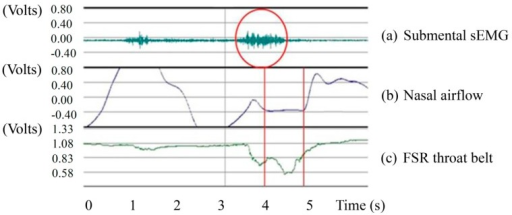 Signals from three sensors: (a) Submental sEMG; (b) Nasal airflow; and (c) FSR throat belt (the Y-axis preserves the original scaling in the BIOPAC MP100 for each signal).