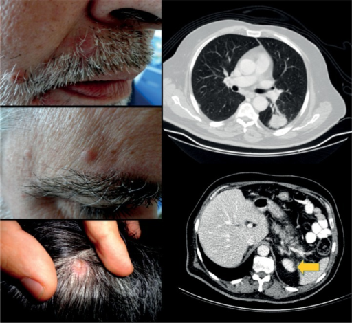 Eruptive painful erythematous nodules on the face and scalp (photographs on the left). CT scans (on the right) revealed a 4-cm mass in the left lower lobe. Note the left adrenal gland metastasis (arrow).