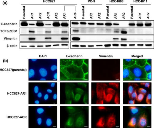Epithelial to mesenchymal transition in afatinib-resistant cell lines. (a) HCC827-AR1, -ACR, -AR4, HCC4006-AR1, and -AR2 displayed downregulation of E-cadherin and upregulation of vimentin. (b) Immunofluorescence cytochemistry of E-cadherin and vimentin on HCC827 and its several sublines are shown. HCC827 displayed epithelial phenotype although HCC827-AR1 and ACR displayed mesenchymal phenotype. Scale bars, 10 μm.